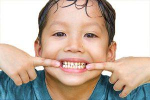 """<img src=""""Children dentistry near me.png"""" alt=""""Children dentist near me"""">"""