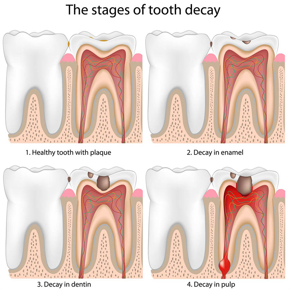 """<img src=""""tooth decay.png"""" alt=""""tooth decay randwick"""">"""